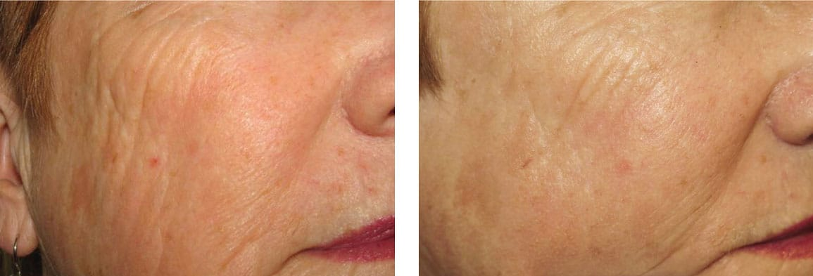 picosure laser pigmentation sydney