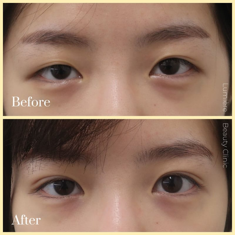 double eyelid surgery before & after
