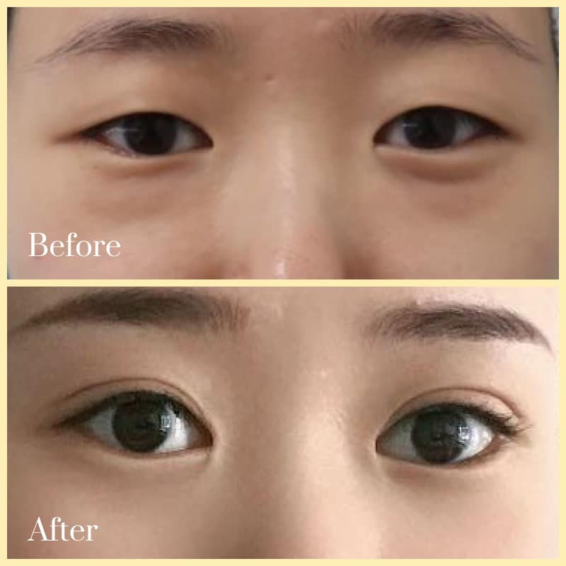 double eyelid surgery before after