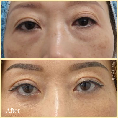 eye lift surgery before after