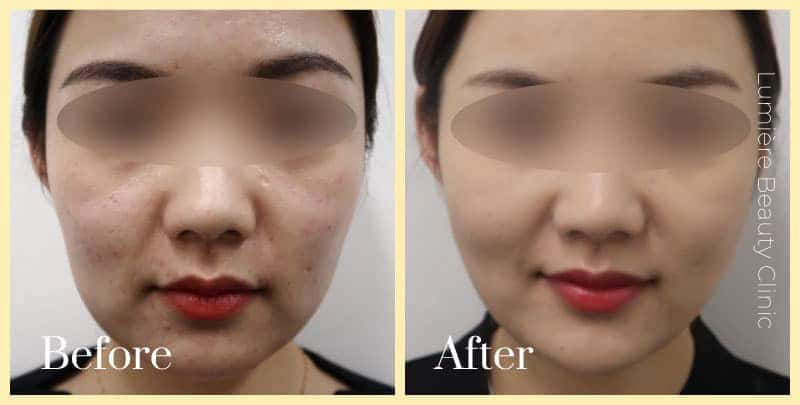 facelift surgery sydney before after