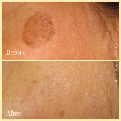 laser pigmentation removal sydney before after
