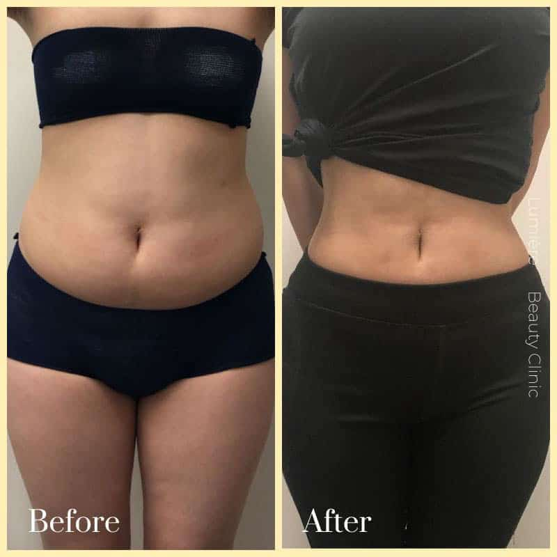 liposuction surgery before after