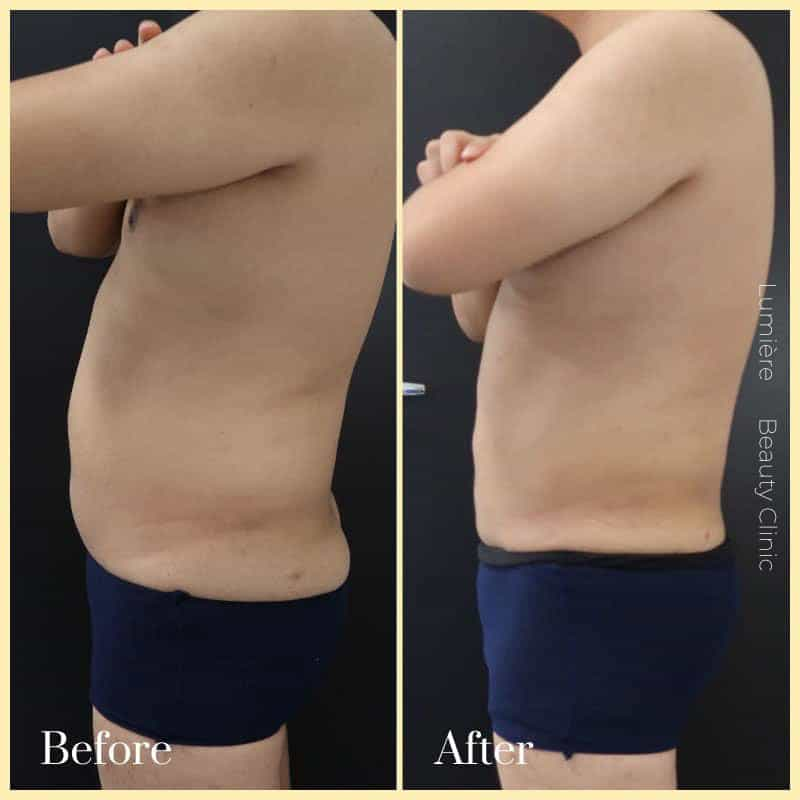 liposuction surgery sydney before after