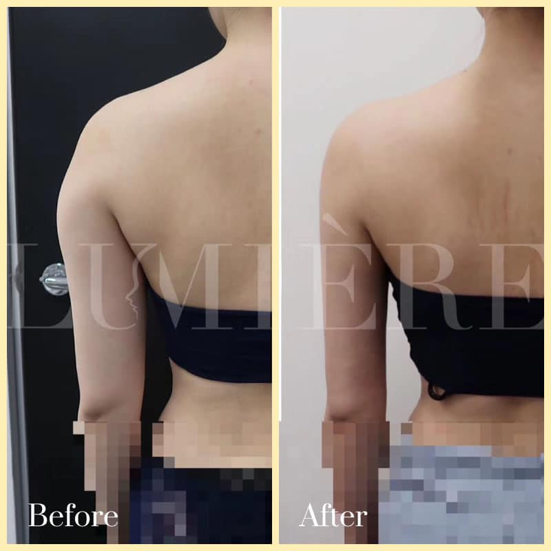 liposculpture before and after