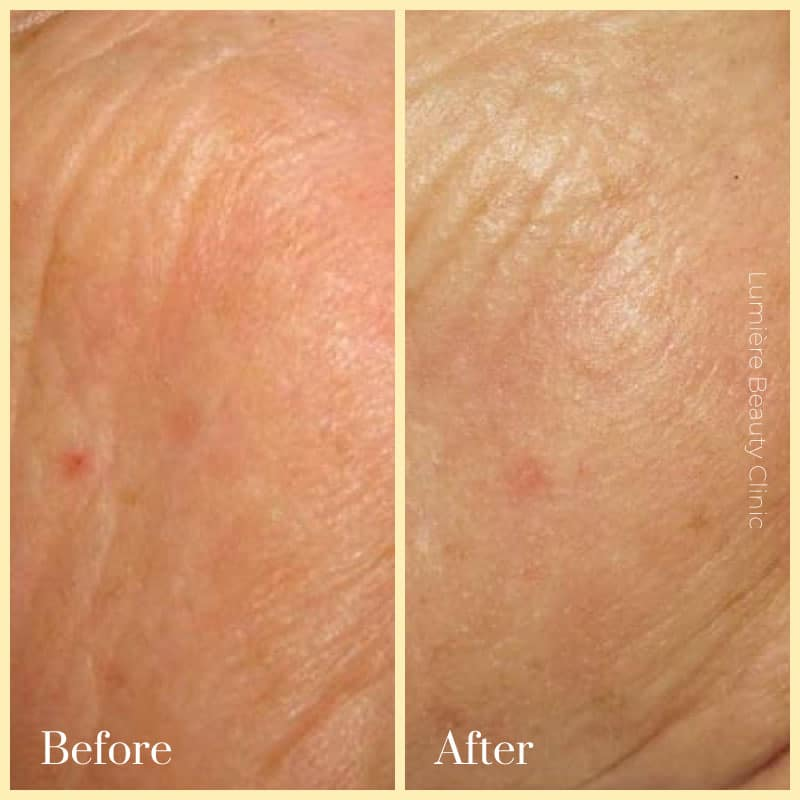 picosure laser pigmentation-sydney before after