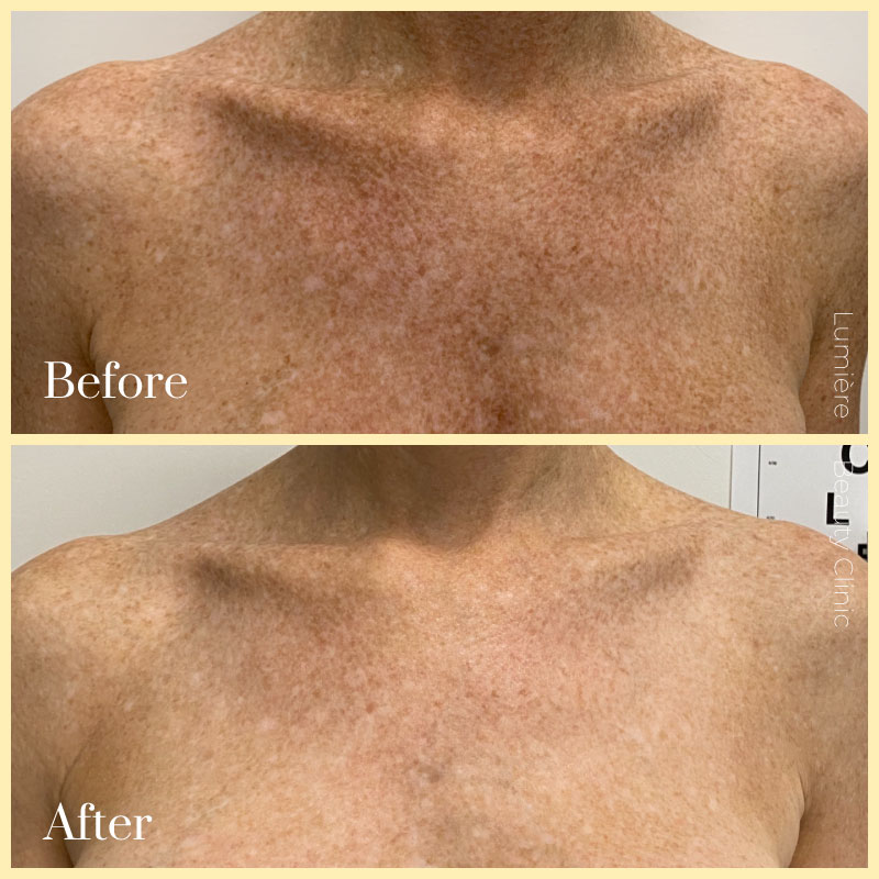 picoway laser pigmentation before after