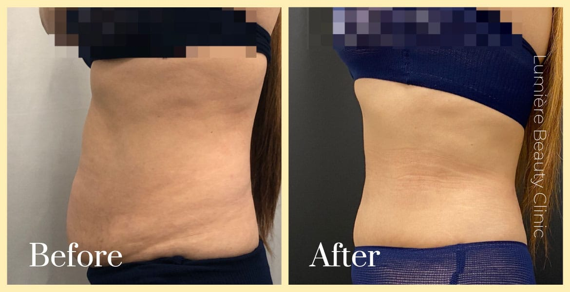 bodytite tummy fat reduction before after