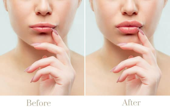 lip fillers injections