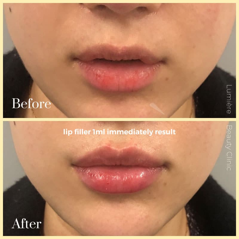 LIP INJECTIONS & FILLERS sydney
