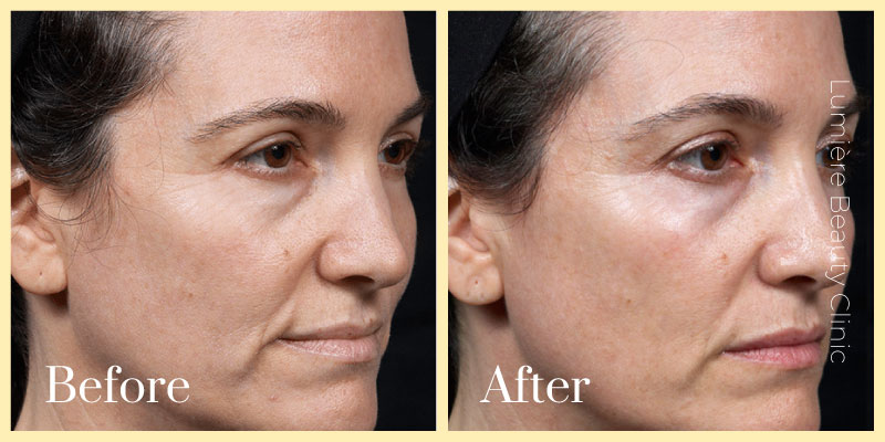 thermage flx before after