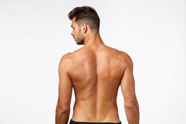 back liposuction sydney
